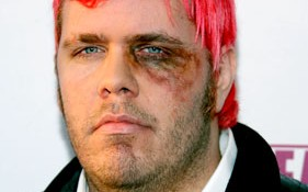Perez Hilton with a black eye